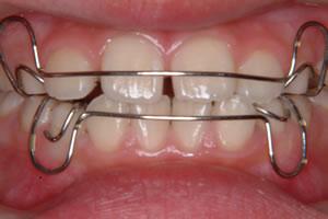 写真:歯列育形成03